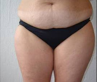 Targetd fat reduction 1. before