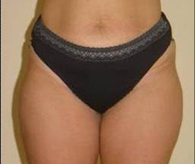 Targetd fat reduction 1. after